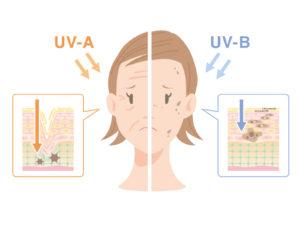 紫外線影響女性